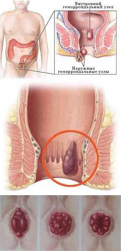 Во время процедуры врач вводит колоноскоп в кишечник пациента через задний проход.